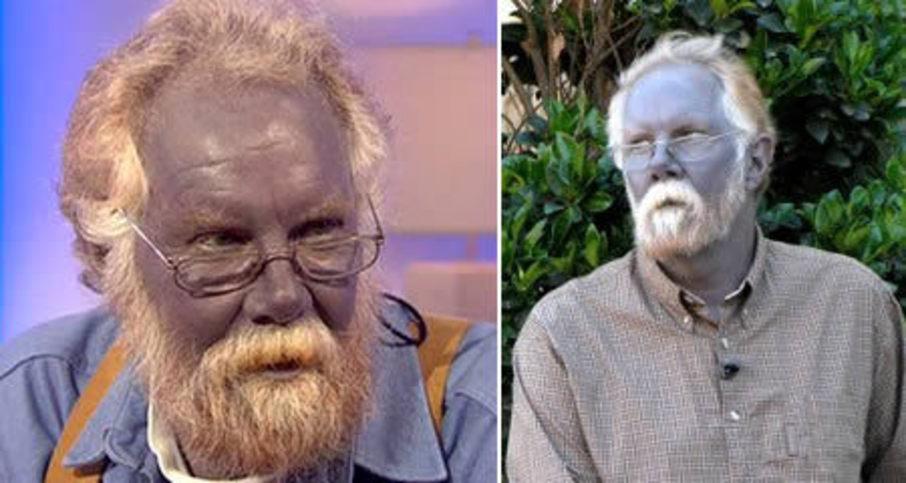 Blue-Skin-Disorder