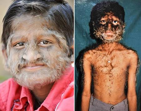 Hypertrichosis-skin