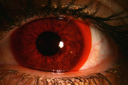 Nike-Maxsight-Contact-Lenses