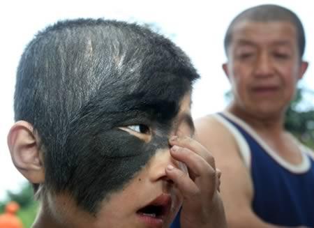 face-hair-birthmark