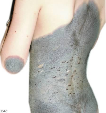 hairy-girl-birthmark