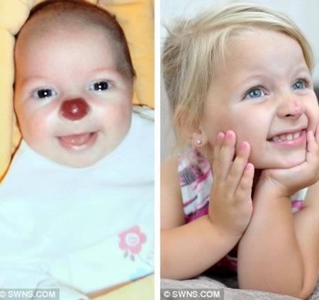 red-nose-birthmark