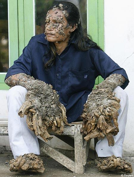 tree-man-skin-condition