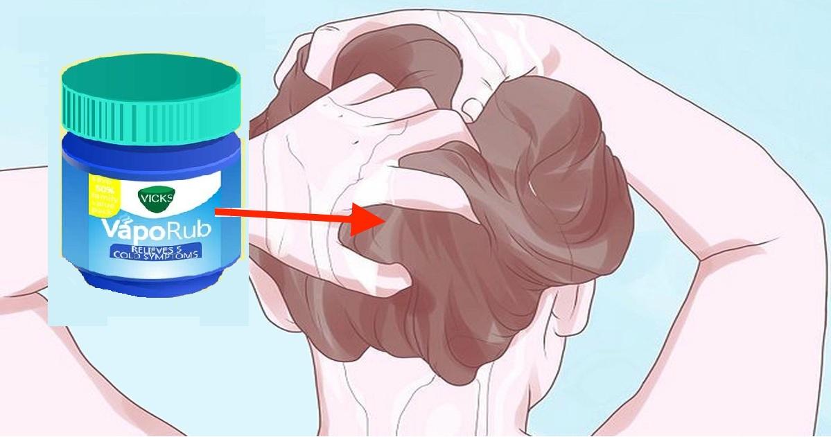 vicks vaporub tegen acne